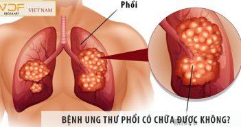 Bệnh ung thư phổi có chữa được không? Chữa bằng cách nào?