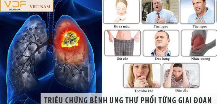Ung thư phổi có triệu chứng gì trong từng giai đoạn 1, 2, 3, 4?