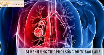 Ung thư phổi sống được bao lâu? Cách kéo dài thời gian sống?